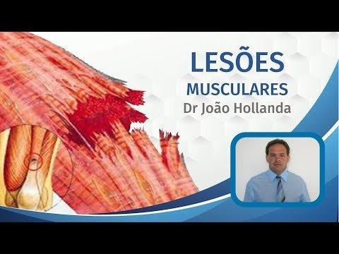 Leões Musculares