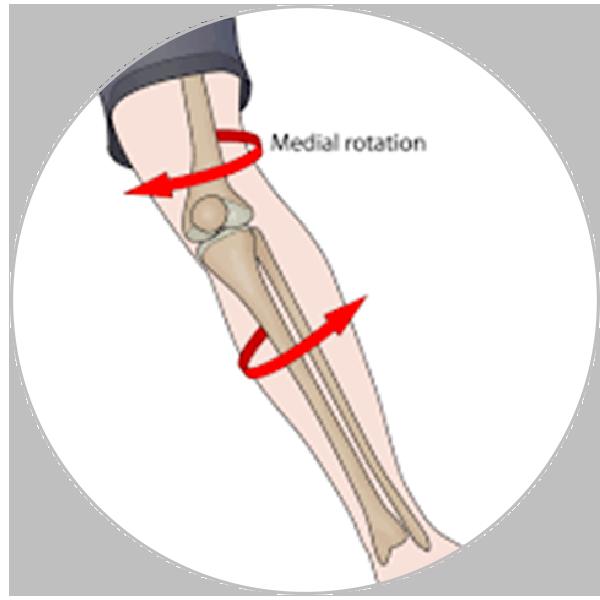 Lesão de Ligamento Cruzado Anterior