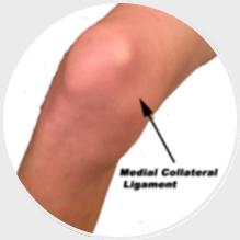 Lesão do Ligamento Colateral Medial do Joelho