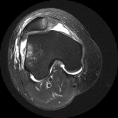 Lesão do Ligamento Patelofemoral Medial