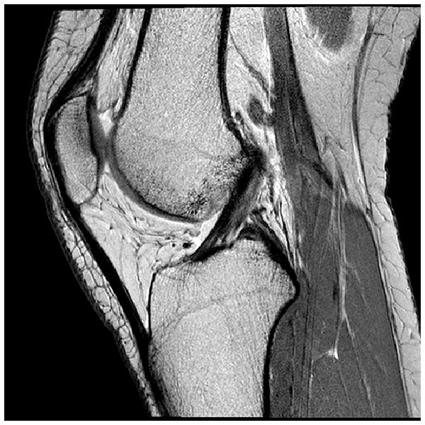 Lesão do Ligamento Anterior Rompido
