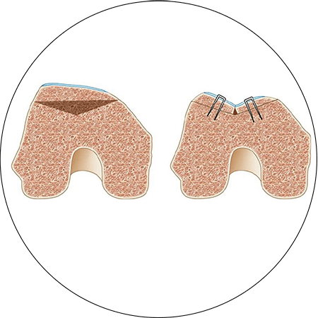 Trocleoplastia