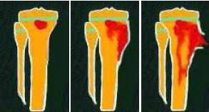 Infecções no joelho infantil