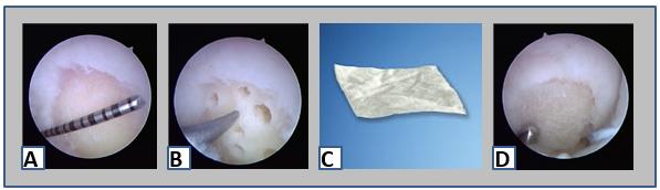 Lesões da Cartilagem Articular