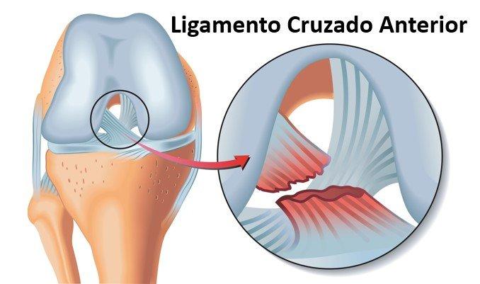 anatomia do ligamento cruzado anterior