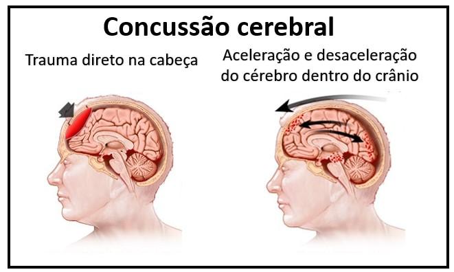 Concussão cerebral