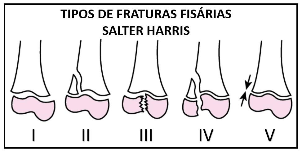 FRATURA 3