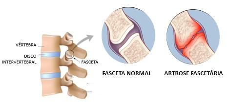 artrose facetária
