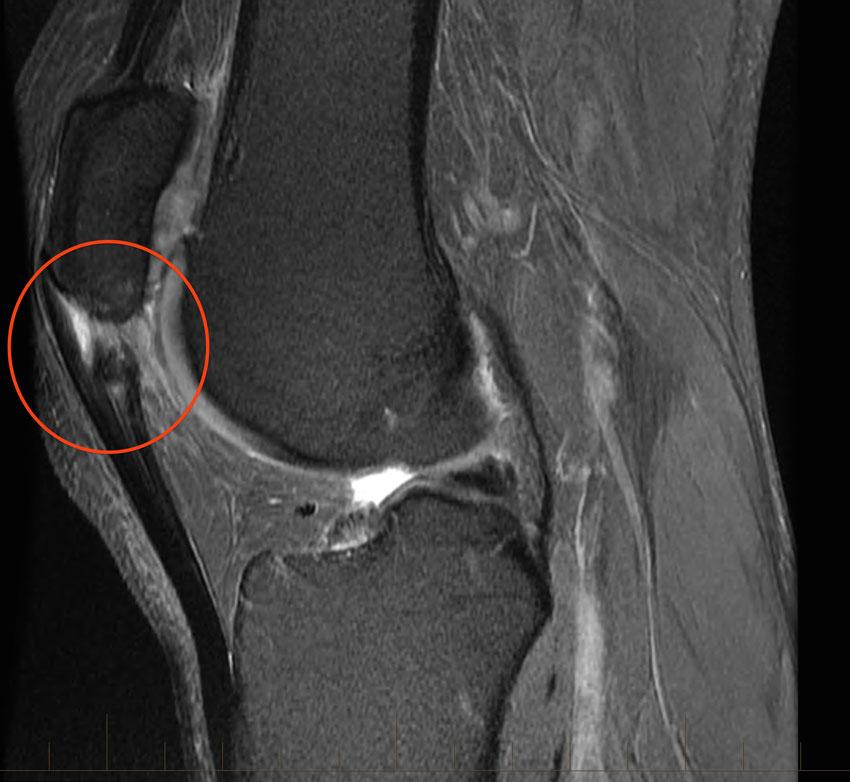 Lesão parcial do tendão