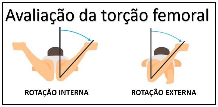 desalinhamento rotacional 1