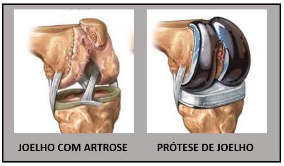 protese de joelho